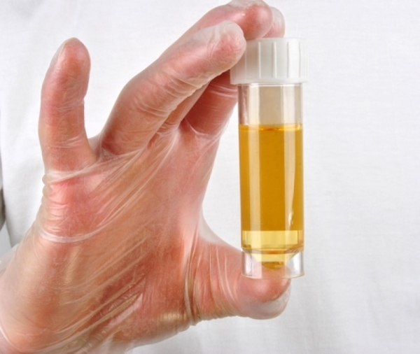 Повышенный белок в моче у взрослых и детей