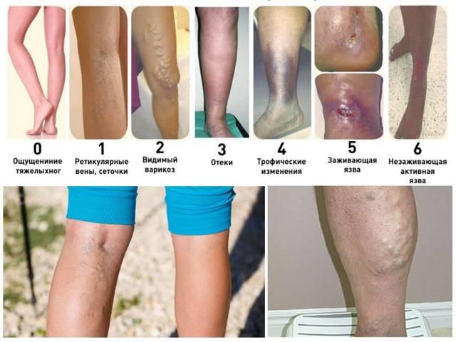 Варикозное расширение вен на ногах лечение, симптомы и подробные фото