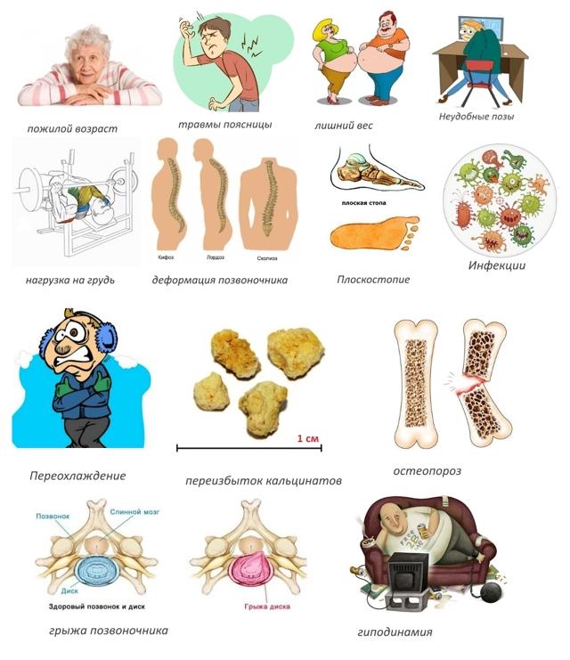 Спондилез пояснично-крестцового отдела позвоночника: симптомы и лечение