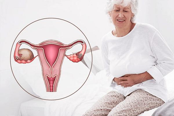Дисфункция яичников: что это такое? Симптомы и лечение