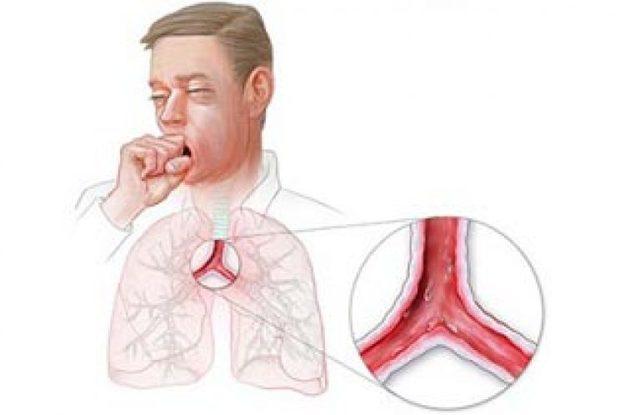Трахеит у взрослых: симптомы и актуальные способы лечения
