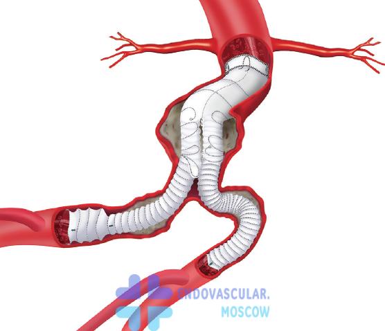Аневризма брюшного отдела аорты: симптомы и варианты лечения