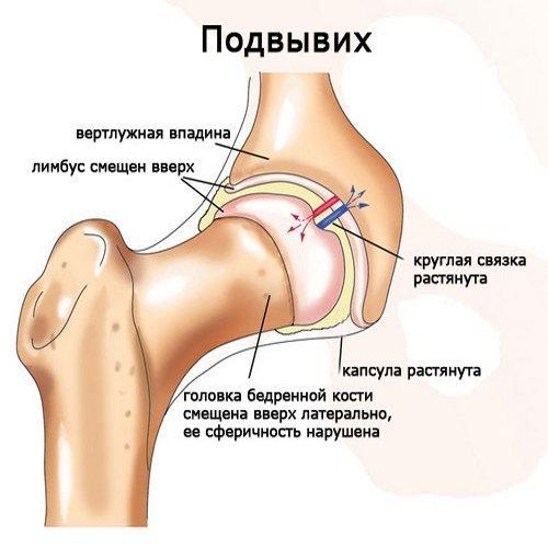 Дисплазия тазобедренных суставов у новорожденных детей (грудничков)