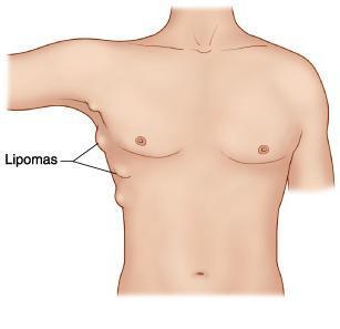 Причины липомы, симптомы и основные способы лечения
