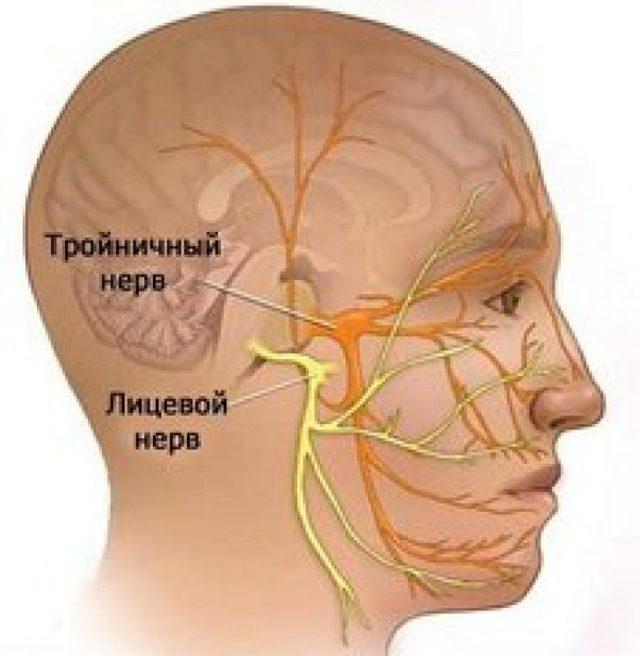 Симптомы неврита лицевого нерва и актуальные схемы лечения