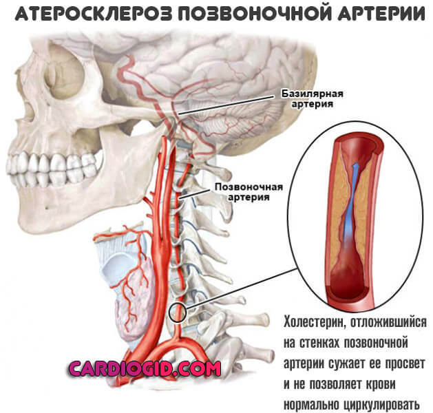 Синдром позвоночной артерии: симптомы и способы лечения