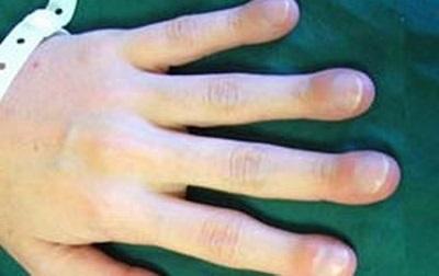 Симптомы муковисцидоза, причины и лечение
