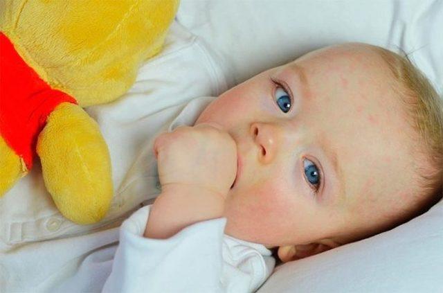 Атопический дерматит у детей: симптомы и схема лечения, советы Комаровского