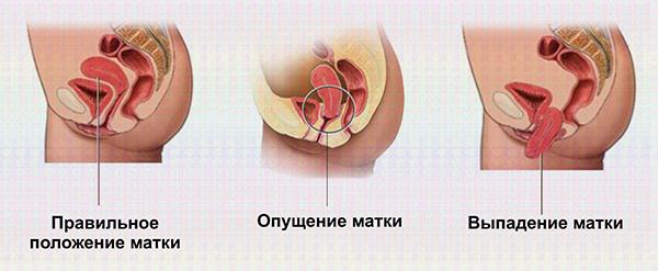Опущение матки, симптомы и лечение в домашних условиях