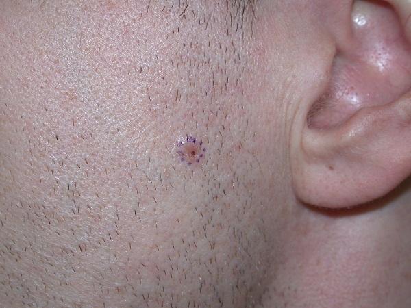Базалиома: что это такое? Фото, причины и способы лечения базалиомы на коже