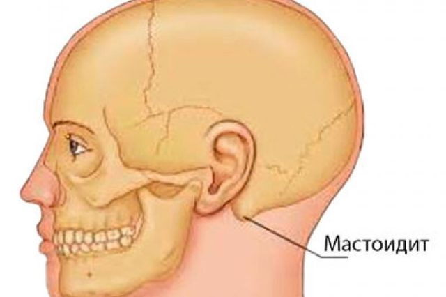 Мастоидит, что это такое? Симптомы и лечение