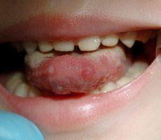 Кандидоз полости рта: симптомы и способы лечение кандидоза во рту