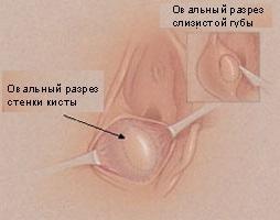 Как лечить кисту бартолиновой железы