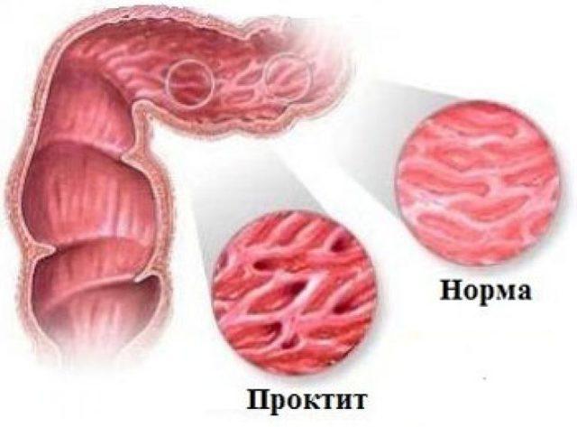 Проктит кишечника: симптомы и лечение у взрослых