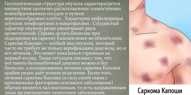 Саркома Капоши, что это такое? Первые симптомы и способы лечения