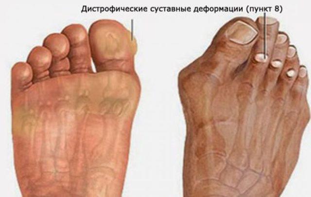 Диабетическая стопа: симптомы и лечение, фото