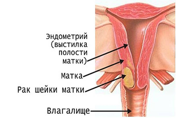 Как лечить дисплазию шейки матки 3 степени
