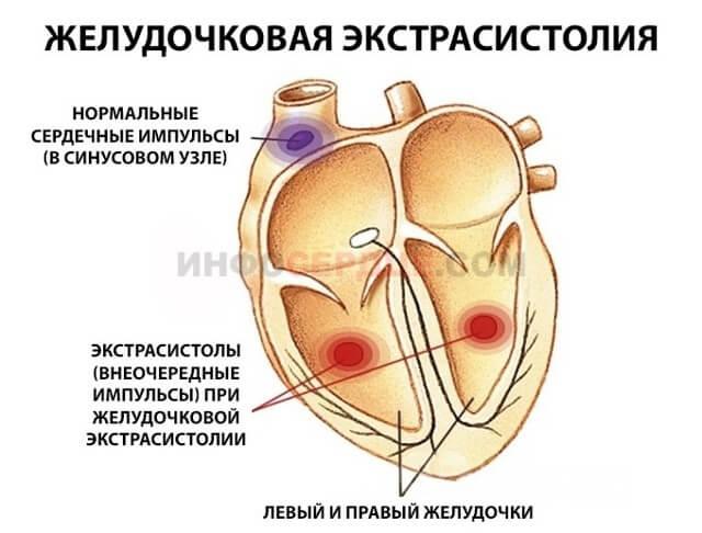 Желудочковая экстрасистолия, что это такое? Лечение и последствия