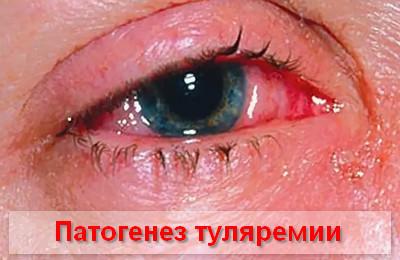 Туляремия, что это такое? Симптомы и лечение у человека