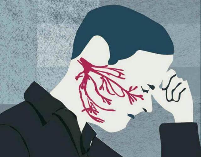 Как лечить невралгию тройничного нерва в домашних условиях