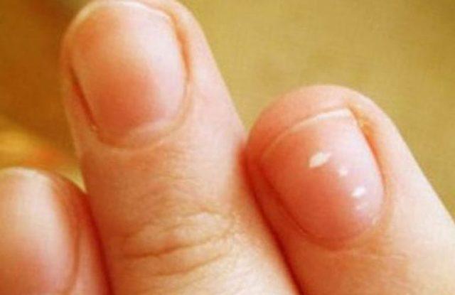 Почему на ногтях появляются белые пятна? Причины и лечение