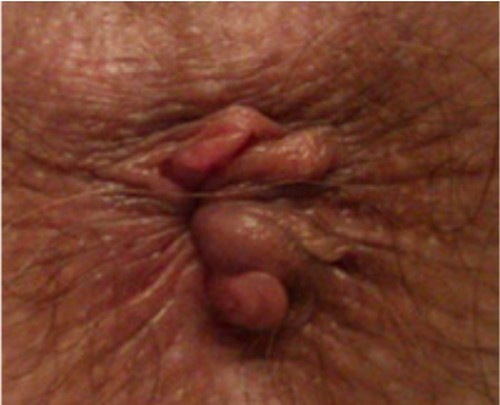 Наружный геморрой: симптомы, фото и способы лечения