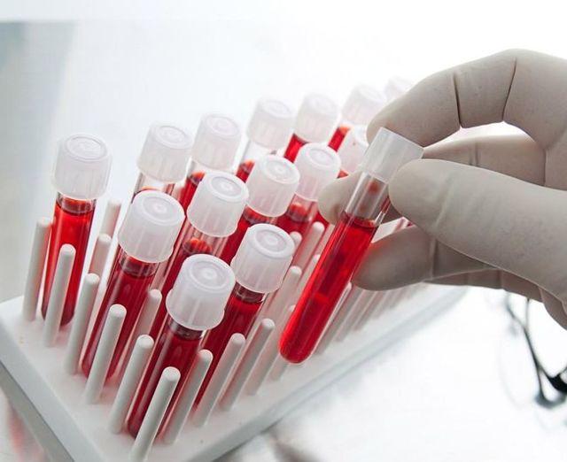 Почемулейкоциты в крови повышены