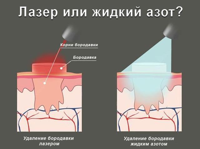 Подошвенная бородавка: симптомы, фото, способы удаление бородавок