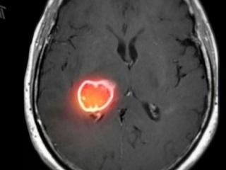 Астроцитома головного мозга: причины и лечение, прогноз для жизни