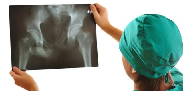 Артроз тазобедренного сустава: симптомы и схема лечения
