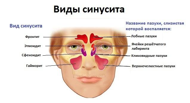 Синусит у взрослых: симптомы и схема лечения на дому