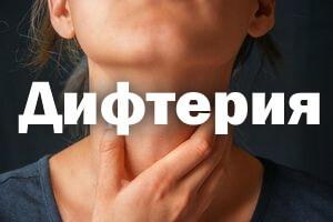 Дифтерия у детей и взрослых: симптомы, лечение и профилактика