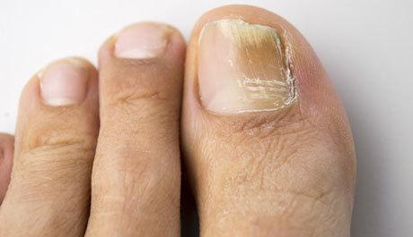 Лечение грибка ногтей народными средствами: самые лучшие и эффективные рецепты