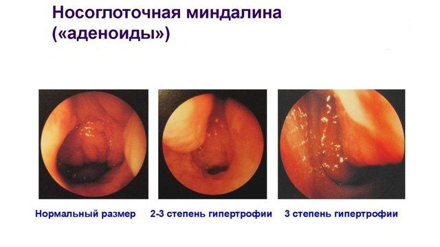 Аденоидит у детей: фото, симптомы и рекомендации по лечению