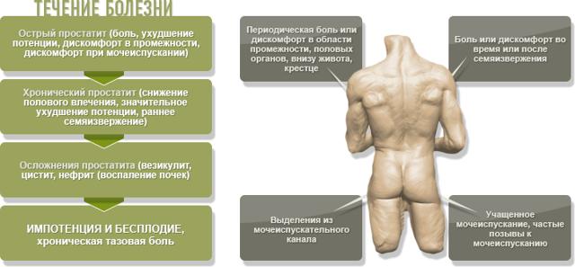 Аденома предстательной железы: симптомы, лечение и прогноз
