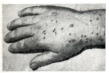 Анкилостомидоз: симптомы, диагностика и лечение у человека