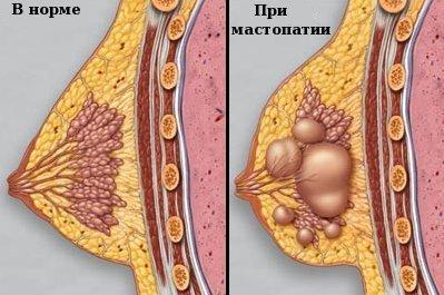 Как лечить диффузно фиброзно-кистозную мастопатию