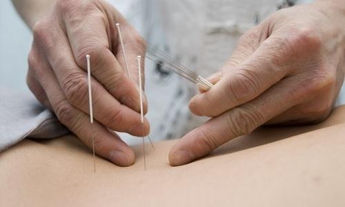 Как лечить грыжу белой линии живота