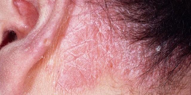 Себорея на голове: симптомы и лечение с помощью медикаментов