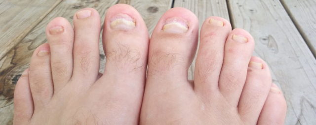 Чем лечить грибок ногтей на ногах: препараты и народные средства