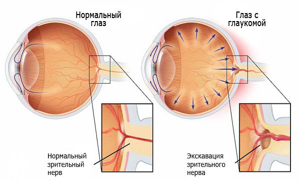 Симптомы глаукомы, лечение и профилактика
