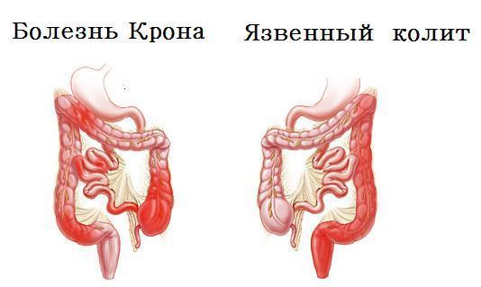 Сигмоидит, что это такое? Симптомы и лечение
