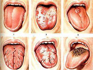 Глоссит что это такое, симптомы и лечение
