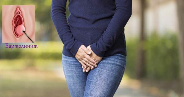 Бартолинит у женщин, первые симптомы и способы лечения