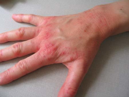 Симптомы нейродермита, лечение и причины возникновения