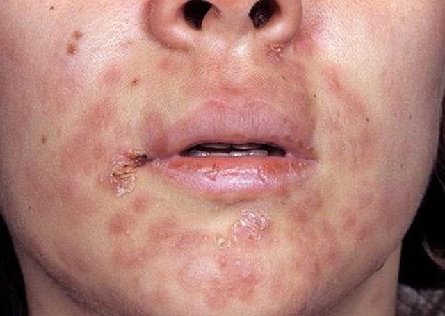Сифилис: симптомы и первые признаки, как лечить сифилис